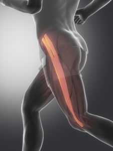 Illiotibial band syndrome; What's the cause and what to do about it